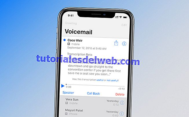 iPhone Voicemail-zu-Text-Transkription funktioniert nicht?  Wie man es repariert!